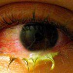 ¿El uso de lentes de contacto puede provocar la transmision de enfermedades?
