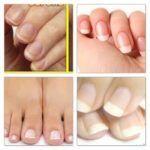 ¿Por qué crecen las uñas?